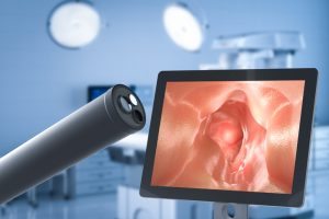 COVID-19 May Increase Colon Cancer Death Rates